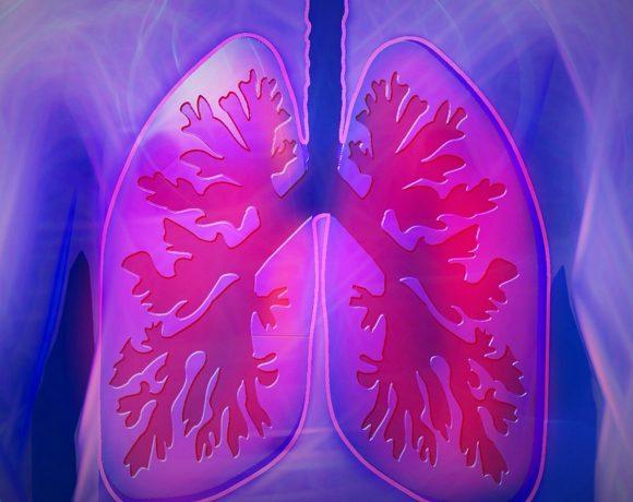 การวินิจฉัยโรคติดเชื้อรา Aspergillus ที่ปอดแบบรุกราน